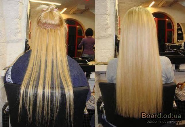 Цена пересадки волос в иркутске